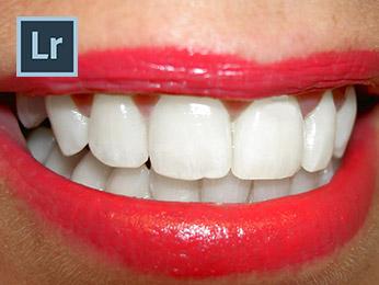 How to Whiten Teeth in Lightroom