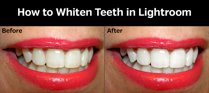 Lighten Teeth In Lightroom With These Simple Instructions